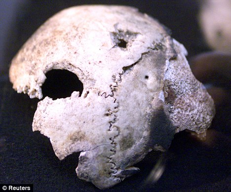 This was supposed to be Hitler's Skull In The Russian Archives. Later was found to be from a female by DNA.