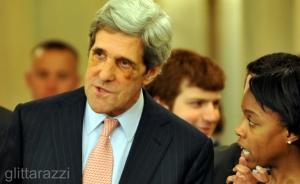 John Kerry's Black Eye
