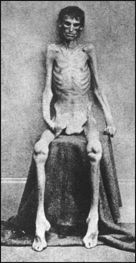 UNION SOLDIER UPON RELEASE FOR ANDERSON CONCENTRATION CAMP!